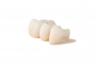 dental-bridge-roseville-ca