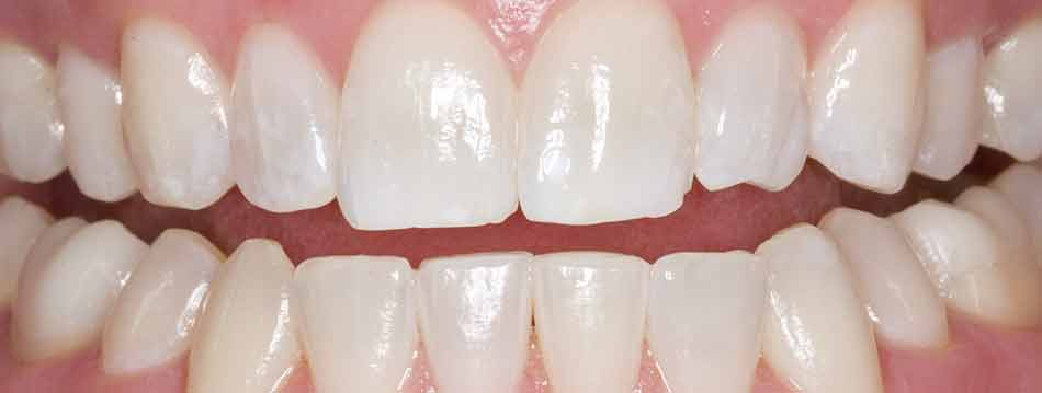 Opalescence Boost in office teeth whitening after
