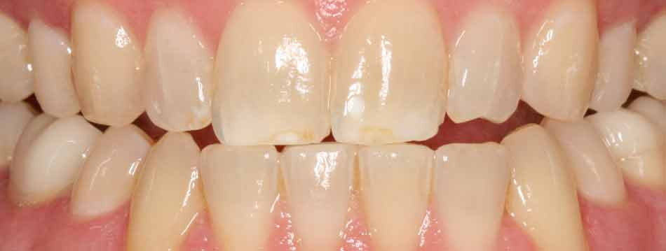 Opalescence Boost in office teeth whitening before